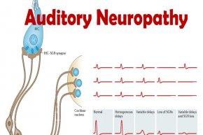 ความผิดปกติของการได้ยินจากความเสื่อมของระบบประสาท (AUDITORY NEUROPATHY)