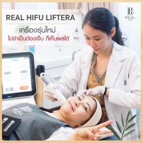 HIFU รีวิว Real Clinic ไม่เจ็บ
