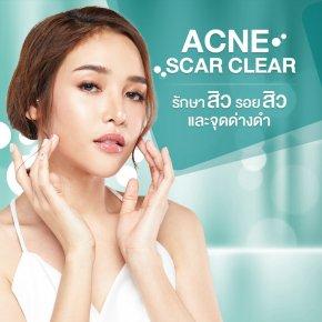 Acne Scar Clear