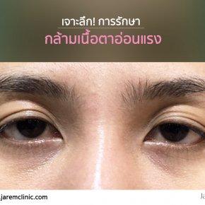 กล้ามเนื้อตาอ่อนแรง นิยามของหมอยุ้ย