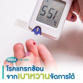 โรคแทรกซ้อนจากเบาหวานจัดการได้