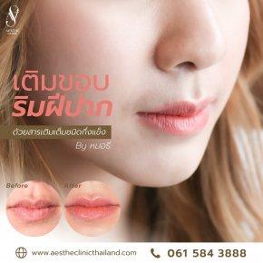 ฟิลเลอร์ปาก ให้ดูอวบอิ่ม อย่างเป็นธรรมชาติ - Aesthe Clinic