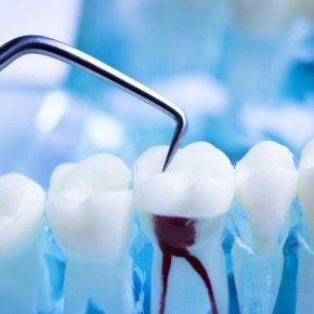 มีวัสดุอุดฟันสีโลหะจำเป็นต้องเปลี่ยนหรือไม่