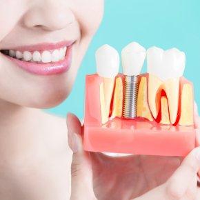 ทำไมต้องรากฟันเทียม ??