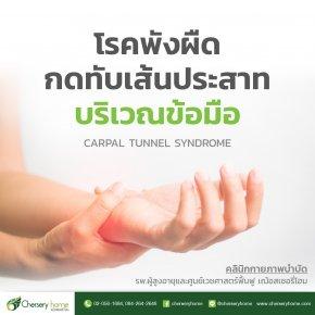 โรคพังผืดกดกทับเส้นประสาทบริเวณข้อมือ (Carpal Tunnel Syndrome)