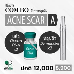 Beauty Combo : Acne Scar & Weight Loss