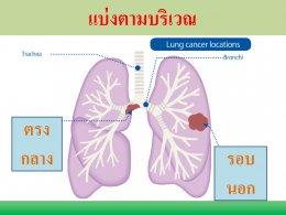 มะเร็งปอด โรคภัยใกล้ตัว ป้องกันดูแลรักษาด้วยวิธีแพทย์จีน
