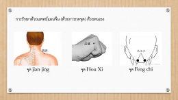 โรคกระดูกคอเสื่อม Cervical Spondylosis