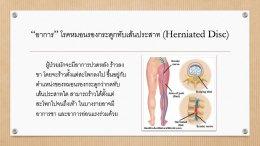 โรคหมอนรองกระดูกทับเส้นประสาท Herniated Disc