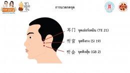 เสียงในหูและหูดับแพทย์จีนมีทางออก