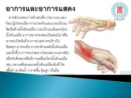 ภัยเงียบกับโรคทางข้อมือ
