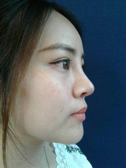รีวิว: สาวน้อยบินไกลมาจากออสเตรเลียเพื่อเเก้จมูกด้วยเทคนิคปรับโครงสร้างจมูก
