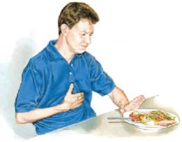 มะเร็งหลอดอาหาร(esophageal cancer)