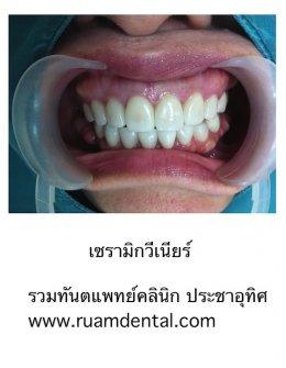 วีเนียร์ ทำฟันสวยงาม แปะฟัน