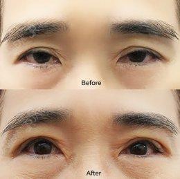 รักษาตาปรือ หนังตาตก