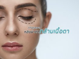 การดูแลแผลหลังผ่าตัดกล้ามเนื้อตาอย่างถูกวิธี
