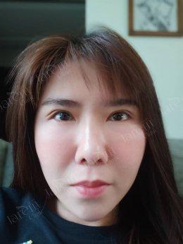 แก้ไขกล้ามเนื้อตาอ่อนแรง ก่อนเสียบุคลิกภาพโดยไม่รู้ตัว