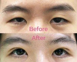 รีวิวแก้ไขกล้ามเนื้อตาอ่อนแรง สำหรับคนตาชั้นเดียว