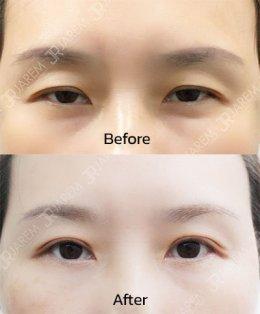 แก้ไขกล้ามเนื้อตาอ่อนแรง สำหรับคนตาเล็ก อยากได้ชั้นตาไม่หนา