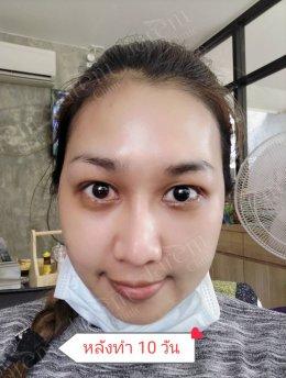 """รักษาตาปรือที่เกิดจาก """"กล้ามเนื้อตาอ่อนแรงแต่กำเนิด"""""""