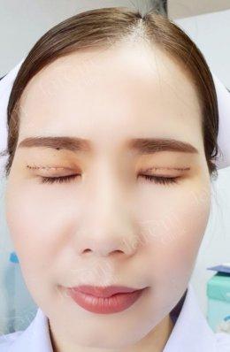 แก้ไขกล้ามเนื้อตาอ่อนแรงสไตล์เกาหลี ด้วยเทคนิคแบบกรีดยาว
