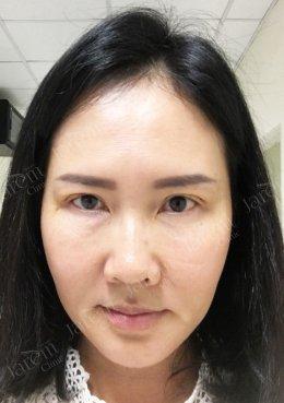 """ชั้นตาสวยเป๊ะ! ลาขาดจากปัญหา """"กล้ามเนื้อตาอ่อนแรง"""""""