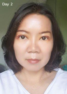 หนังตาตก กล้ามเนื้อตาอ่อนแรง > ผ่าตัดโดยจักษุแพทย์ผู้เชี่ยวชาญ