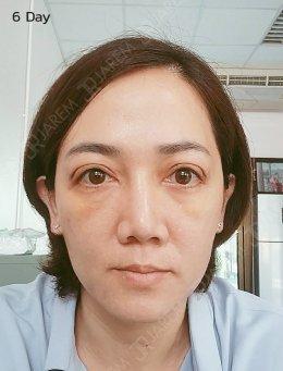 แก้ไขกล้ามเนื้อตาอ่อนแรง + ย้ายไขมันในตา ที่จาเรมคลินิก
