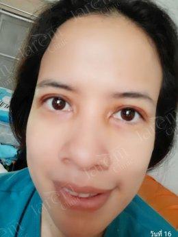 กล้ามเนื้อตาอ่อนแรงแต่กำเนิด ต้องรักษากับจักษุแพทย์เฉพาะทาง