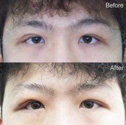 รีวิวแก้ตา จากภาวะกล้ามเนื้อตาอ่อนแรงแต่กำเนิด