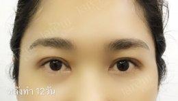 รักษากล้ามเนื้อตาอ่อนแรง ต้องถูกต้อง และตรงจุด