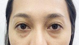 ประสบการณ์กล้ามเนื้อตาอ่อนแรงกับการรักษา