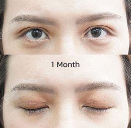 """อาการที่คุณยังไม่รู้ เกี่ยวกับ """"กล้ามเนื้อตาอ่อนแรง"""""""