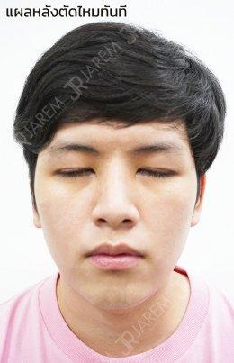 บอกลาตาง่วงนอน ตาปรือ จากภาวะกล้ามเนื้อตาอ่อนแรงแต่กำเนิด