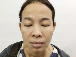รีวิวการรักษากล้ามเนื้อตาอ่อนแรง และผ่าตัดถุงใต้ตา