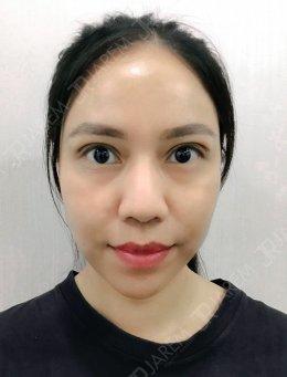เปลี่ยนชั้นตาหลบใน ตาไม่เท่ากัน เป็นตาสวยสดใส