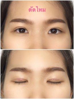 แก้ไขกล้ามเนื้อตาอ่อนแรง พร้อมทำตาสองชั้น by คนตาชั้นเดียว