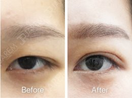 กล้ามเนื้อตาอ่อนแรง ต้องรักษาก่อนเสียบุคลิกภาพ