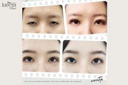 ทำตาสองชั้น แก้ไขกล้ามเนื้อตาอ่อนแรง แบบฉบับคนตาชั้นเดียว
