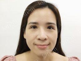 กล้ามเนื้อตาอ่อนแรง กับการแก้ตาครั้งที่ 3 ให้สวยงามแบบสาวเกาหลี