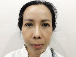 แก้ตาสองชั้น จากภาวะกล้ามเนื้อตาอ่อนแรง และหนังตาตก