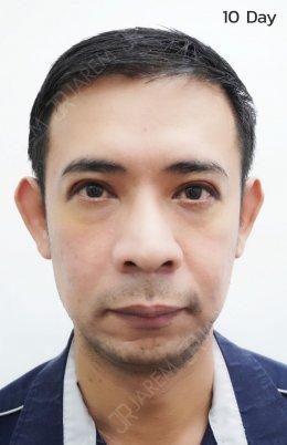 รีวิวการรักษากล้ามเนื้อตาอ่อนแรงในผู้ชายวัย 40+