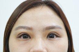 รีวิวกล้ามเนื้อตาอ่อนแรง เติมไขมันตา บอกลาอาการตาไม่เท่ากัน
