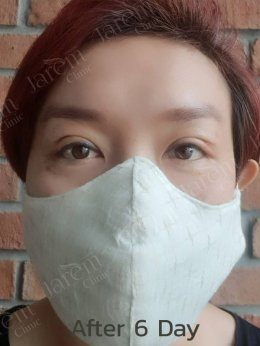 กล้ามเนื้อตาอ่อนแรง ต้องรักษากับจักษุแพทย์เฉพาะทาง