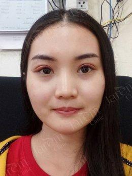 ชั้นตาสวยเป๊ะ! จบปัญหากล้ามเนื้อตาอ่อนแรง