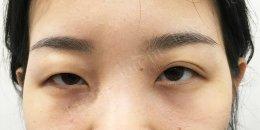 แก้ไขปัญหากล้ามเนื้อตาอ่อนแรง จากอาการตาสองข้างไม่เท่ากัน