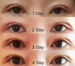 ทำตาสวย ชั้นตาไม่ใหญ่ หมดปัญหากล้ามเนื้อตาอ่อนแรง