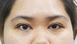 รักษาก่อน..หายก่อน รีวิวการรักษากล้ามเนื้อตาอ่อนแรงแต่กำเนิด