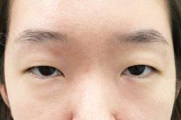ชอบชั้นตาเล็กๆ รูปทรงตาเดิม ต้องทำตากับหมอยุ้ย จาเรมคลินิก