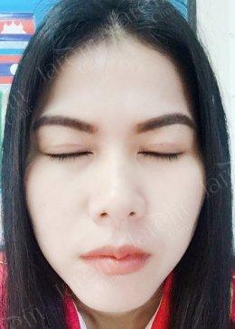 บอกลาอาการตาปรือ หนังตาตก จากกล้ามเนื้อตาอ่อนแรง